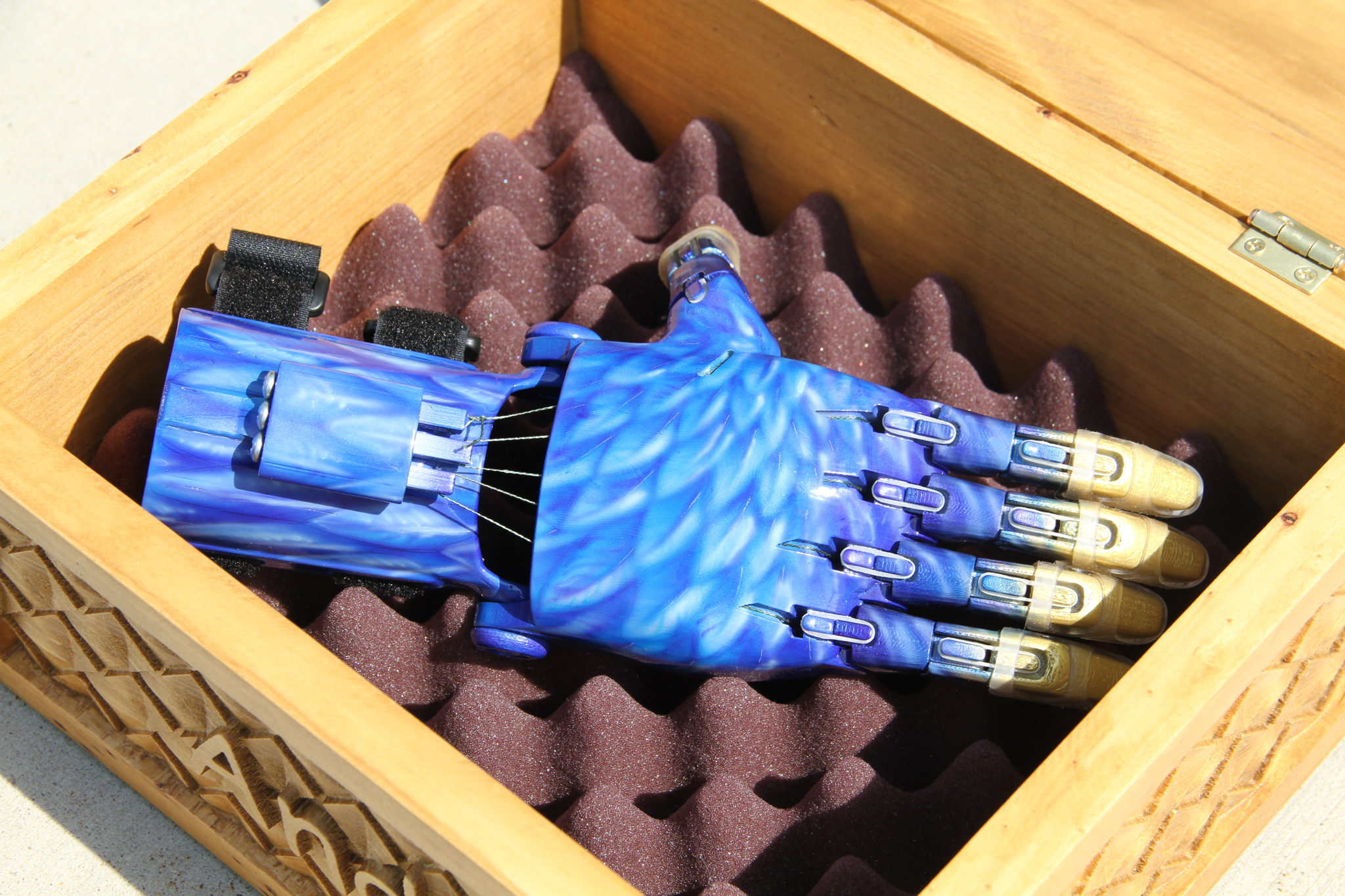 KSL News - Andi Gets a New 3D Prosthetic Hand