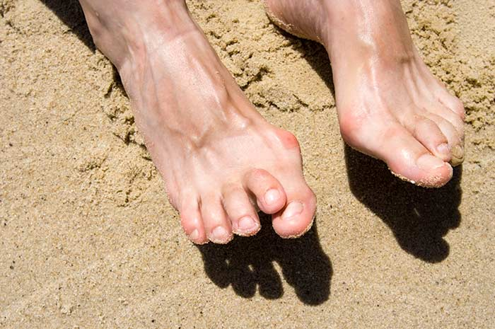 Flip Flops Can Lead to Hammer Toes