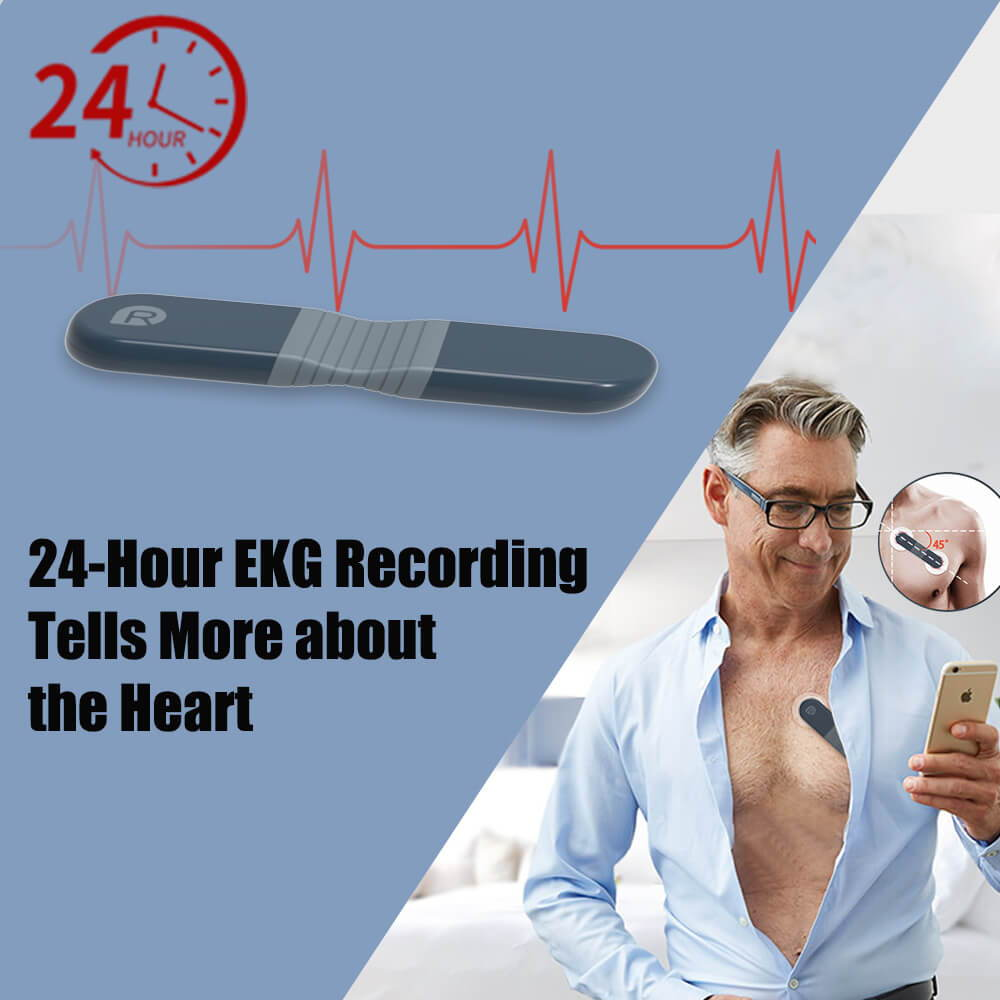 Wellue ECG Recorder with AI Analysis, holter monitor test, holter monitor cost, 24-Hour Holter monitor, portable ECG monitor, portable EKG monitor, Holter monitor