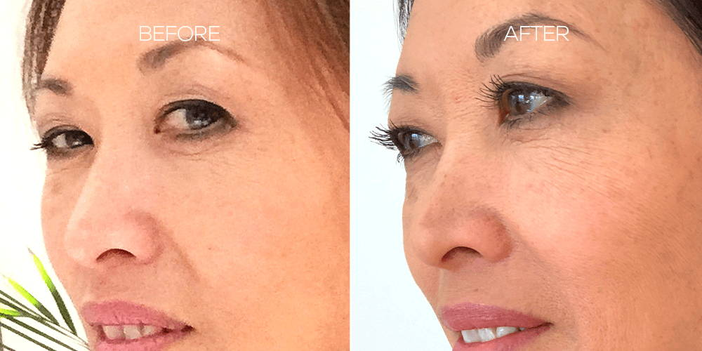 Before and After Results Using LASH Follicle Fortifying Serum with Keracyte® Elastin Complex