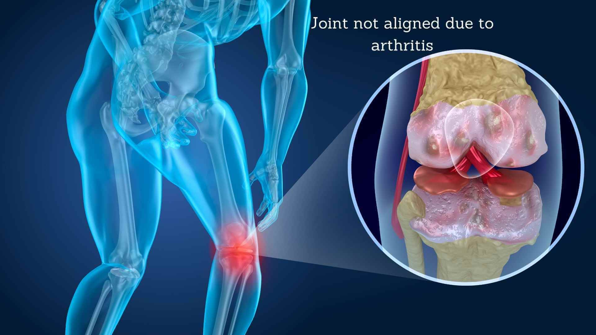 knee joint misaligned due to arthritis condition