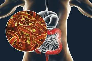 Parasites, Pathogenic Bacteria, MCAS and Mold - auto