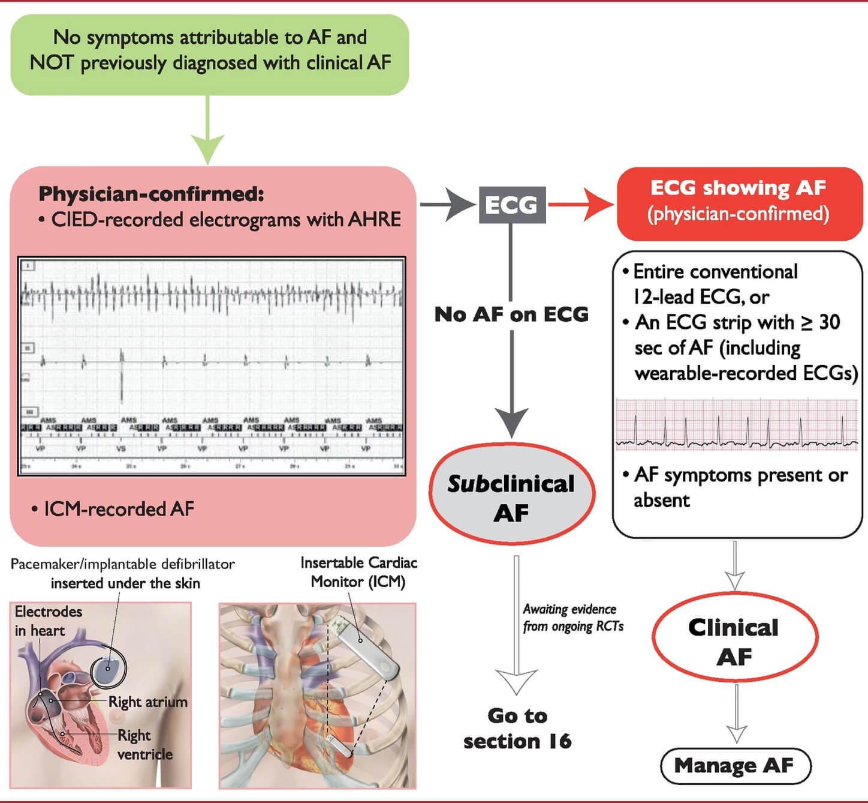 مسجل ECG لـ AFib