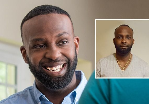 Before and after image of African American male with hair loss