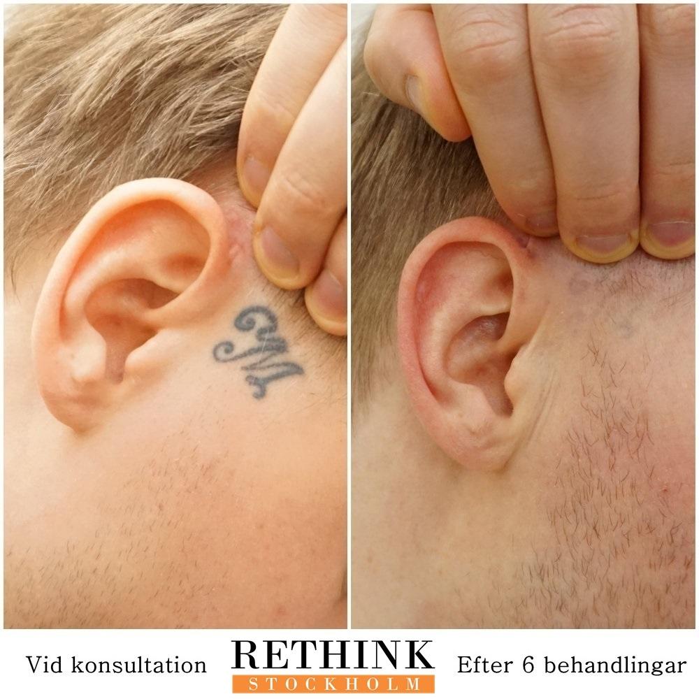 85b1ff47a5f Rethink Stockholm, Stockholm, Odenplan – Bokadirekt