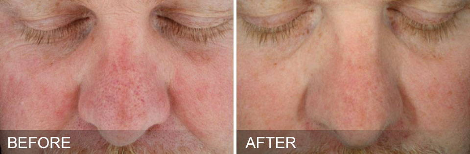 HydraFacial Results - Sun Damage after 3 sessions over 2 months - Thai-Me Spa in Hot Springs AR
