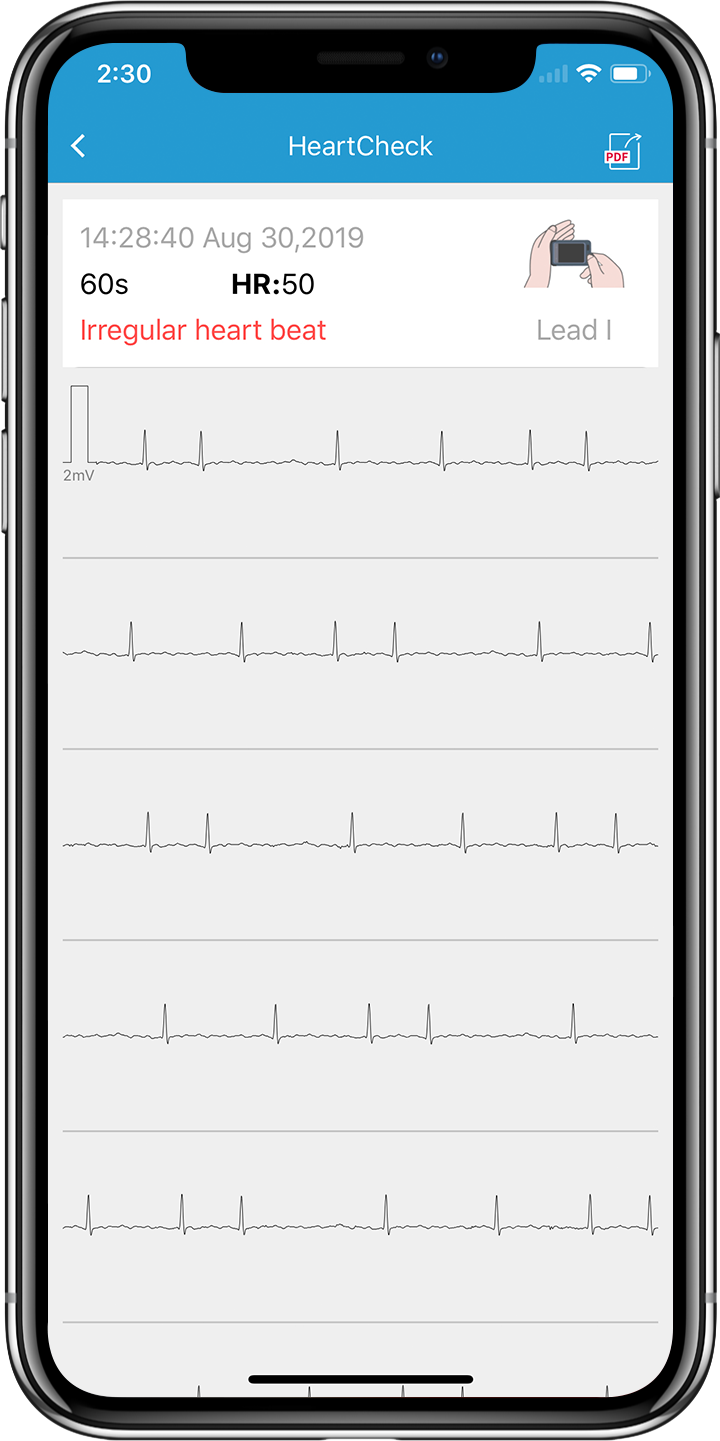 Wellue Pulsebit Ex EKG Monitor App EKG report