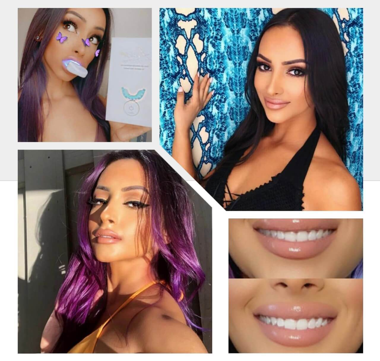 laserglow spa teeth whitening kit miami makeup artist ally