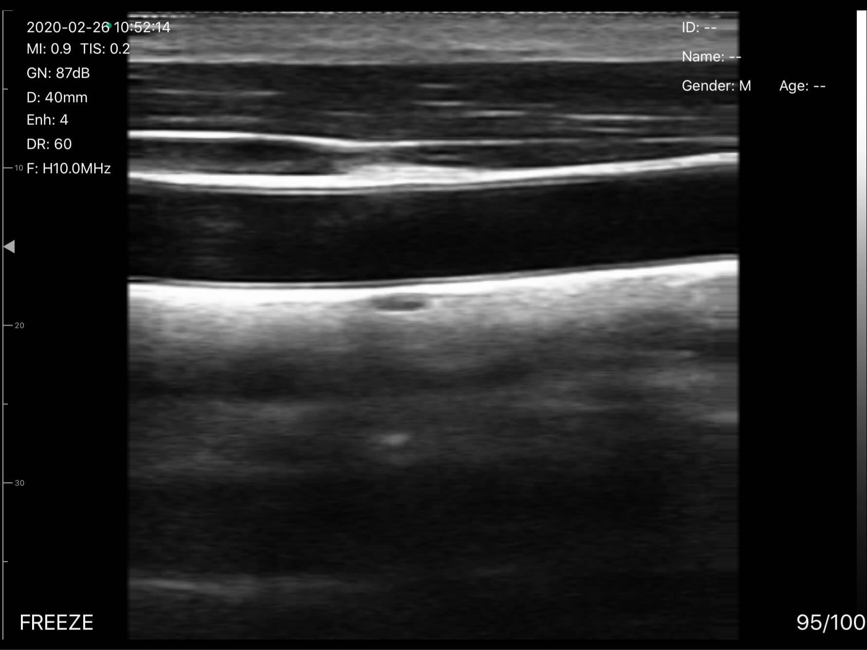 Ultrasound image of carotid & thyroid