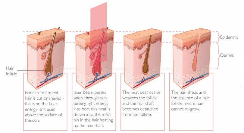 how does hair removal handset work