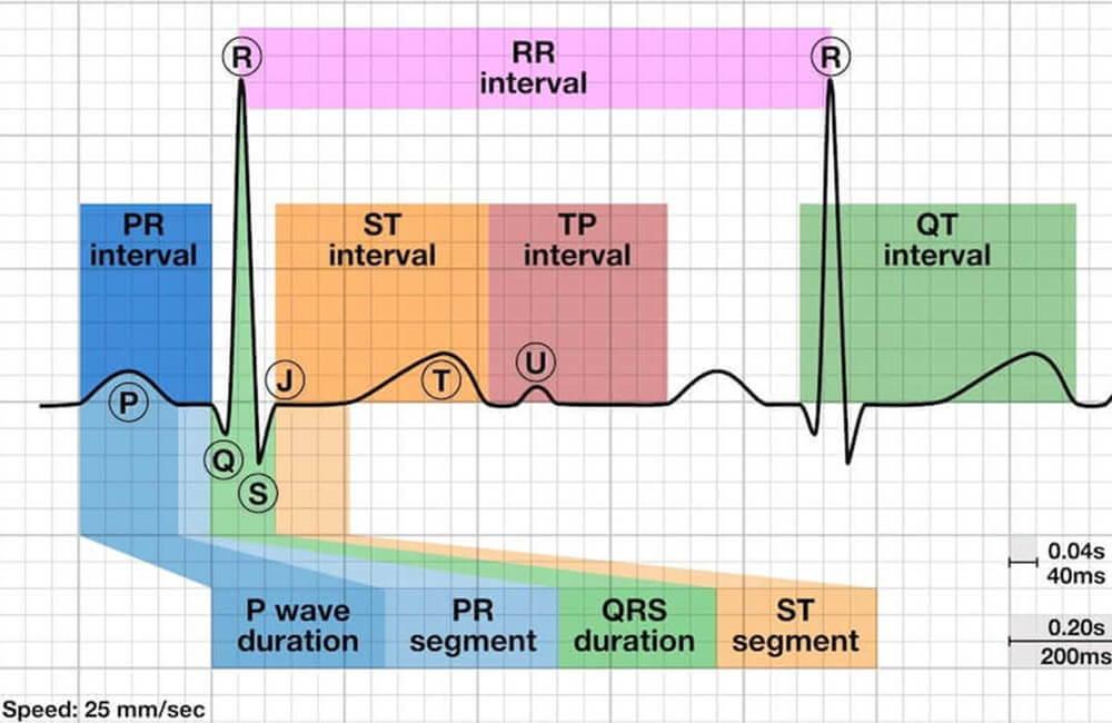 AI 분석 기능이 있는 Wellue ECG 레코더, AI ECG, ECG 보고서, ecg 파형, P파