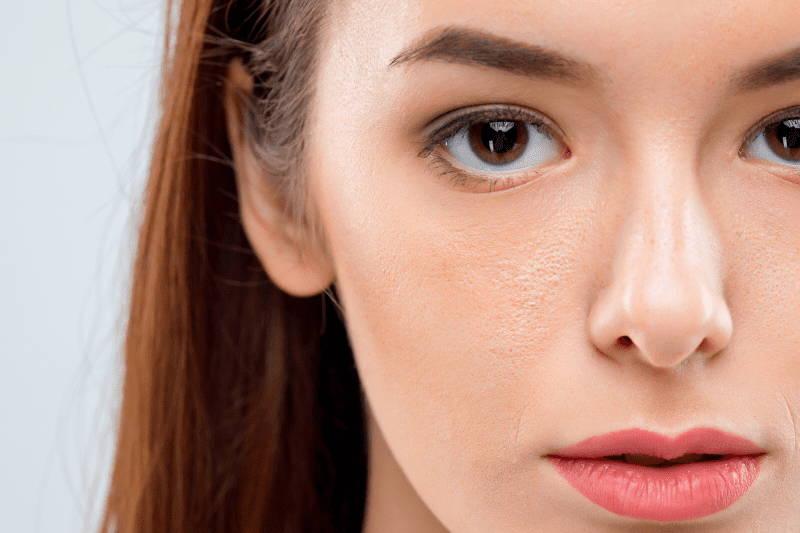Harzsalbe bei großen Poren
