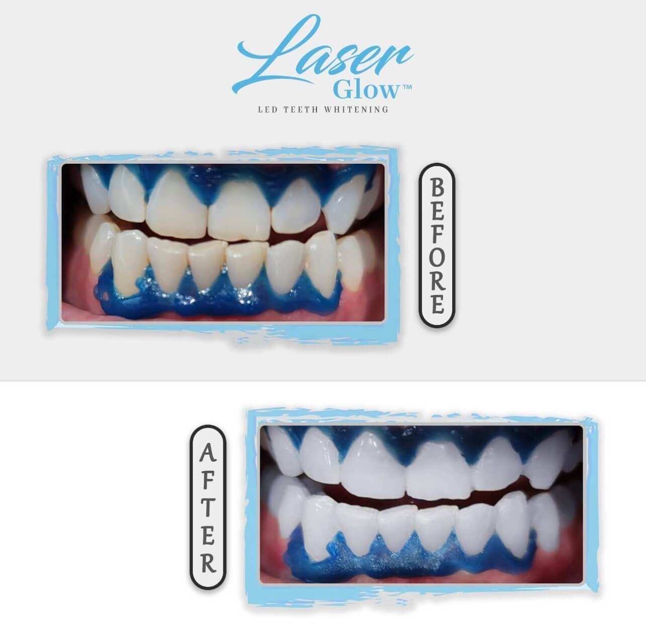laserglow best led teeth whitening kit