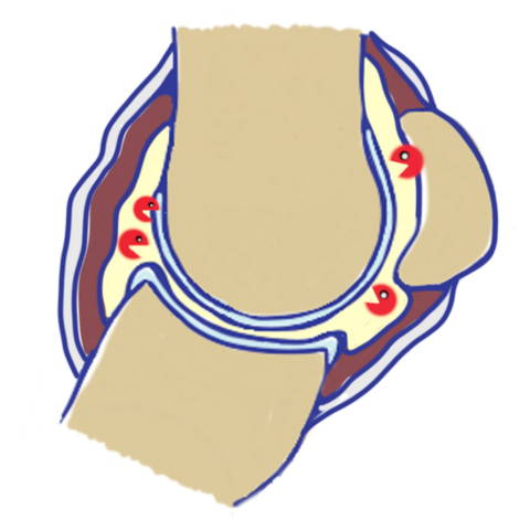 horse fetlock joint arthritis stage I