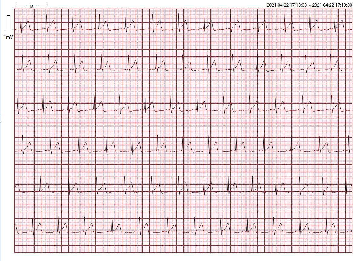ECG波形