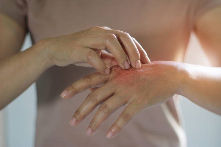 Allergic reactions to the skin are caused by a number of different environmental allergens