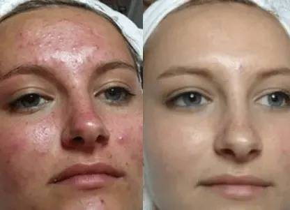look amazing after dr pen microneedling pen