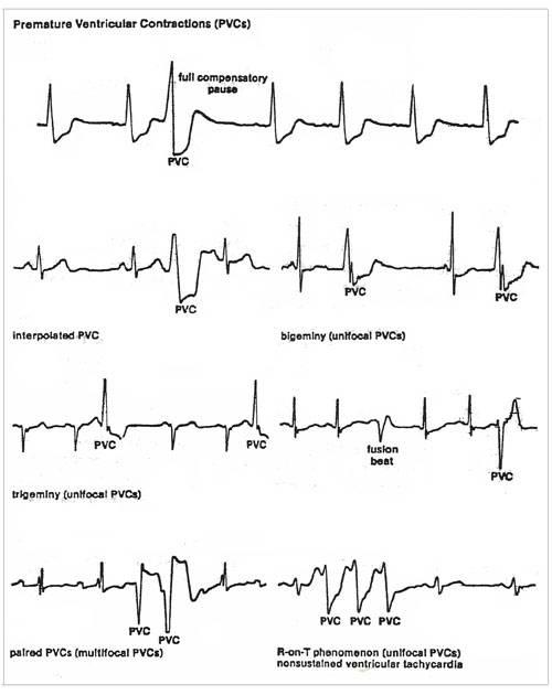 تفسير مخطط كهربية القلب للتقلصات البطينية المبكرة (PVC)