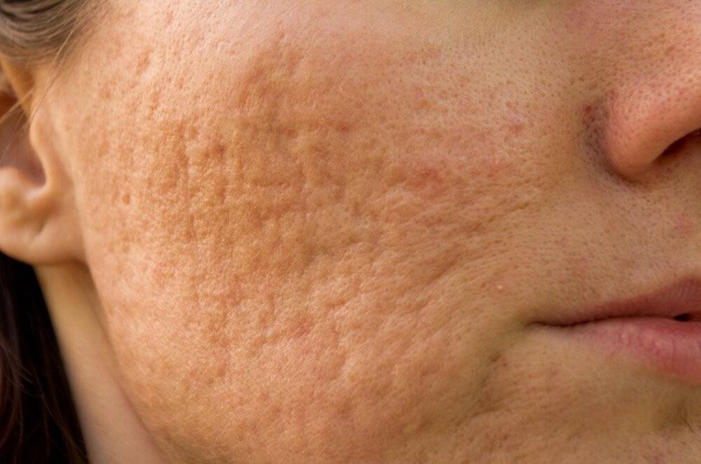 acne and acne scar removal