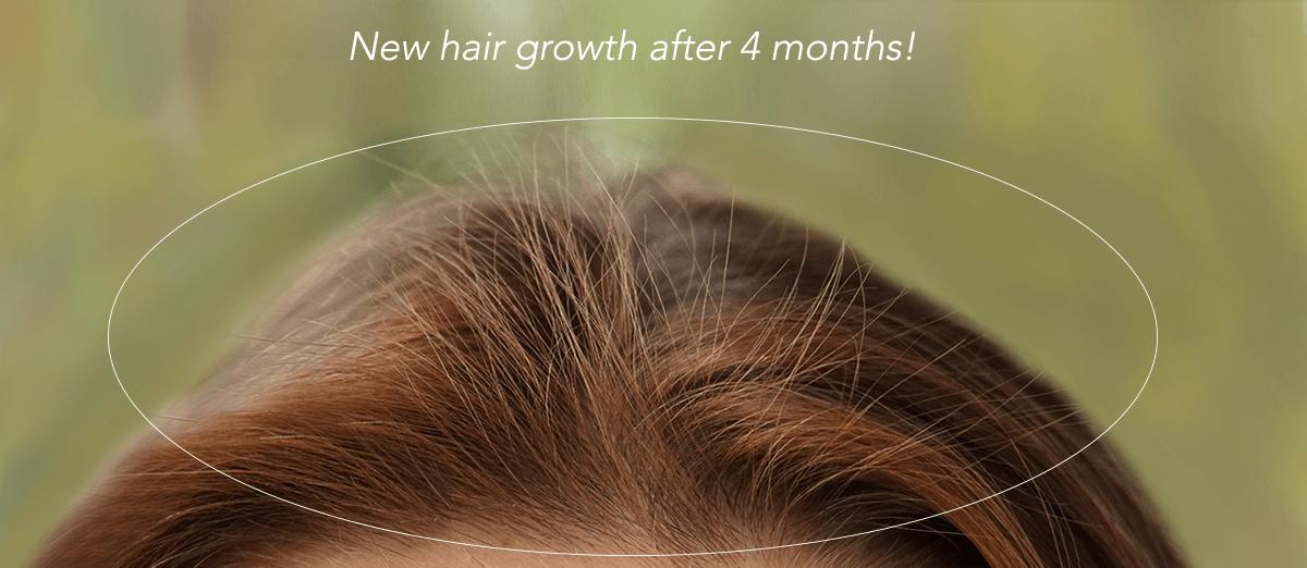 HairMax New Hair Growth Image