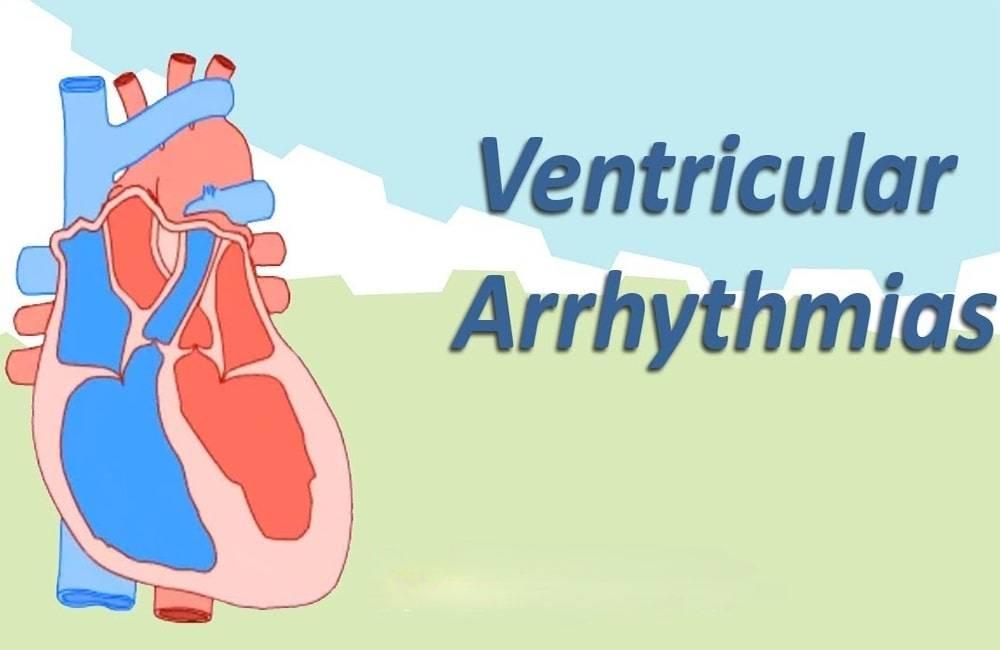عدم انتظام ضربات القلب البطيني