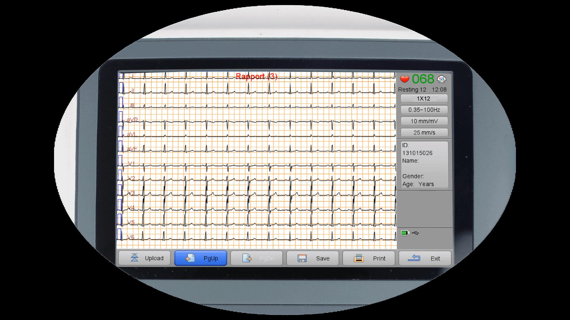 12-lead waveforms screen view of iE 300 ECG machine.