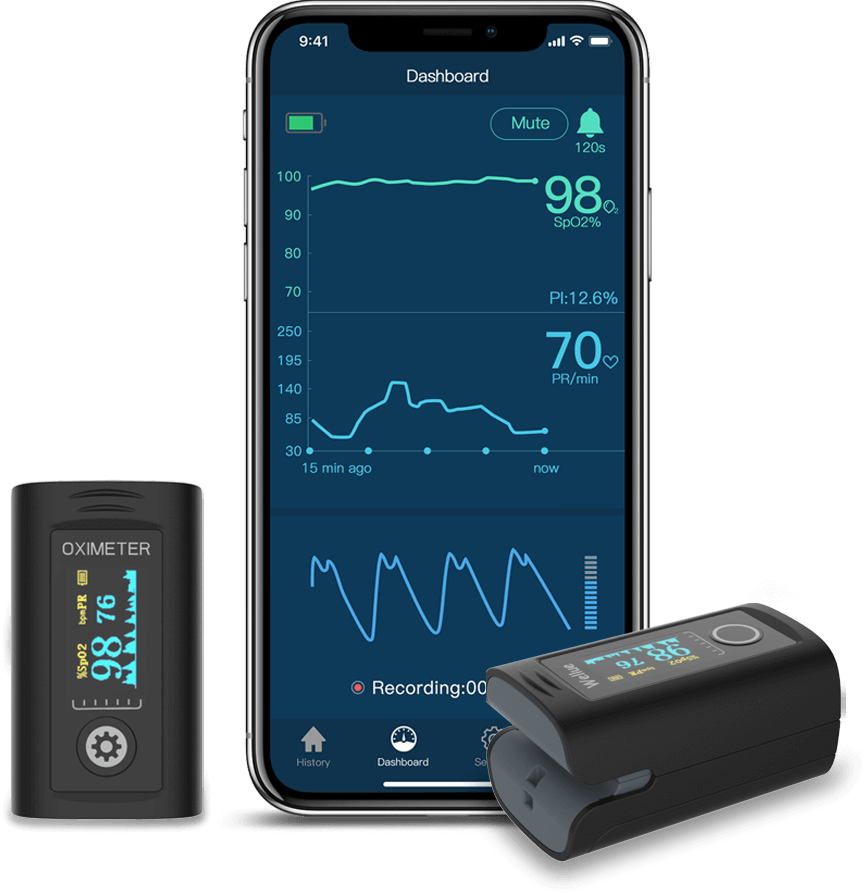Wellue Checkme™ Pro Doctor Vital Signs Monitor