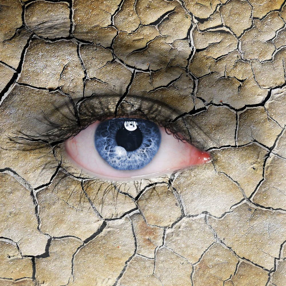 one of the symptoms of menopause-Dry eyes