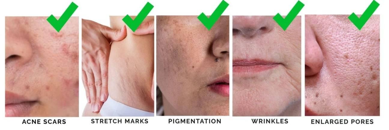 derma roller hair, roller scars, needle roller, derma roller for face