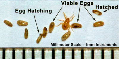 bed-bug-eggs-pictures-6