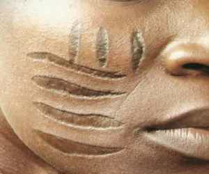 The Curiousity Of Scarification