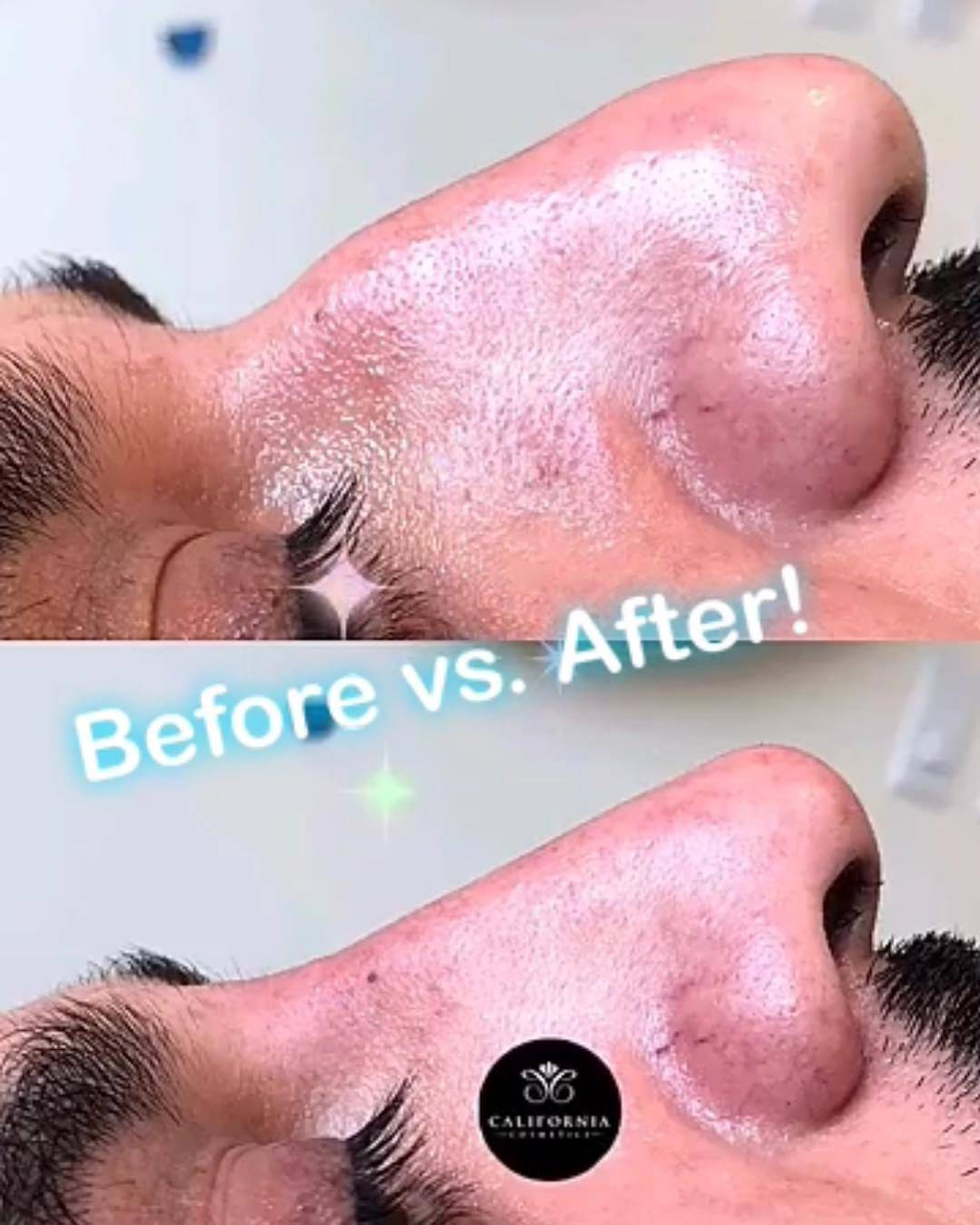 Man's nose before and after nonsurgical nose job