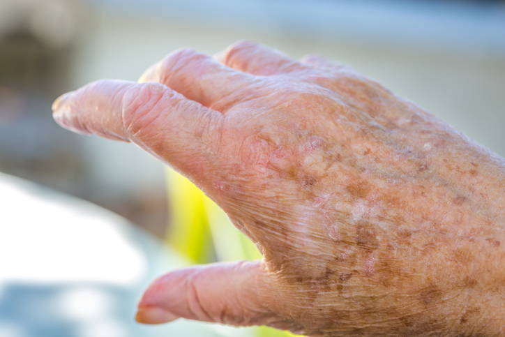 hand with age spots being treated at the skin clinic