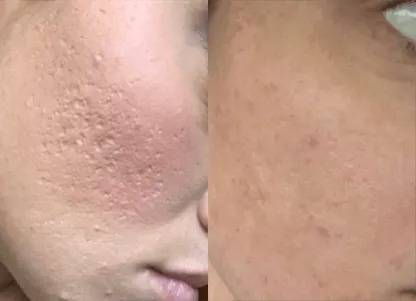 good result after using dr pen microneedling pen