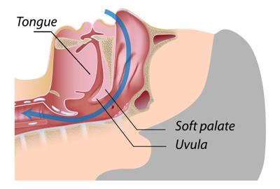 Snoring - Normal breathing