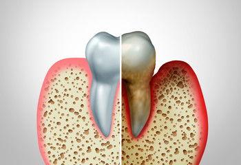 Probiotics for Oral Health -