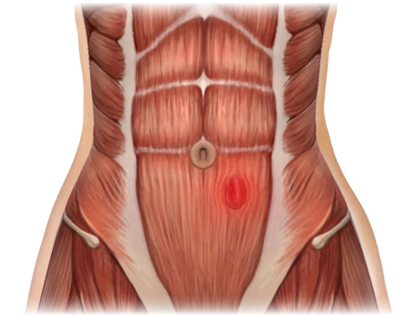 Hernia Illustration
