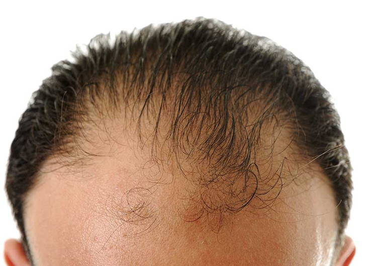 What Causes Female Pattern Baldness And Hair Loss Hair Club