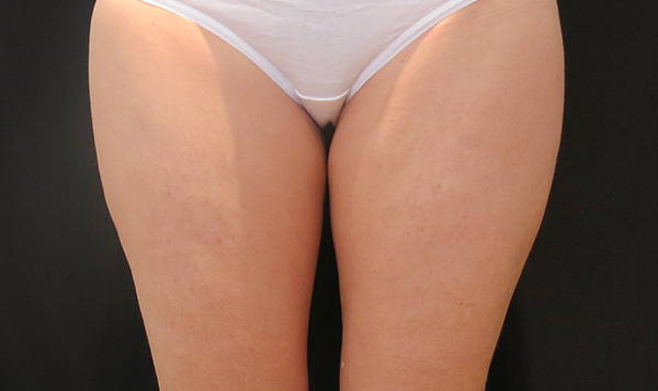 Female | Outer Thigh | CoolSmooth™ Pro Before