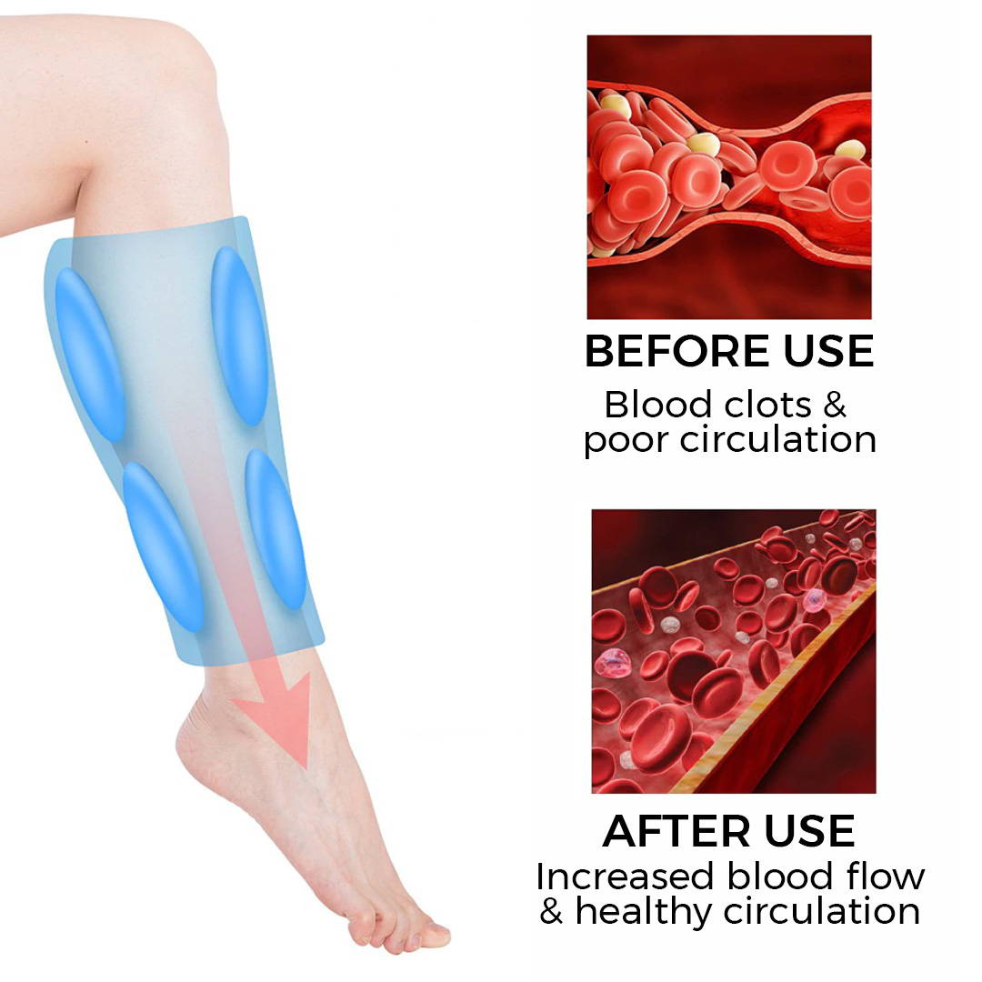 Leg Massager For Circulation, Varicose Veins Pain Relief, Leg Recovery, Massager For Leg Pain