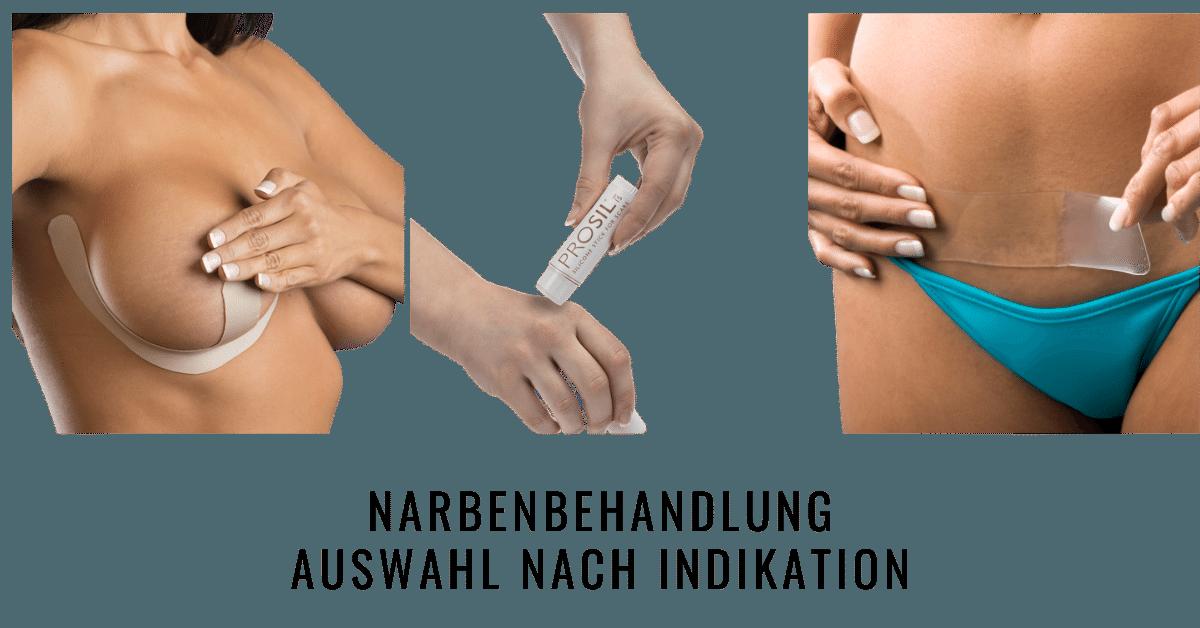 Indikationen zur Narbenbehandlung mit Biodermis Silikonprodukten