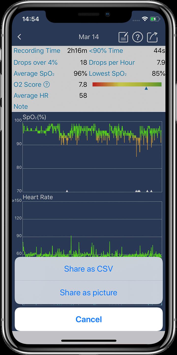 SpO2, fréquence cardiaque et diagramme de mouvement sur l'application de Wellue O2 Ring.