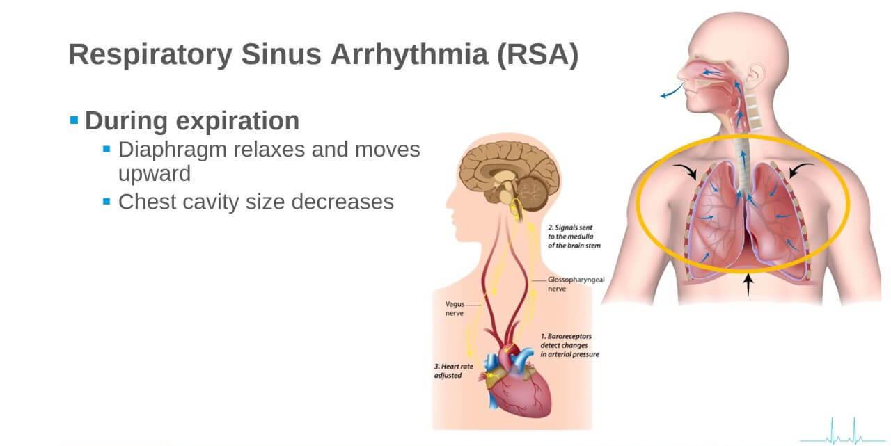 arythmie sinusale respiratoire, RSA, maladie coronarienne, angine de poitrine, cardiopathie rhumatismale, maladie valvulaire, insuffisance cardiaque