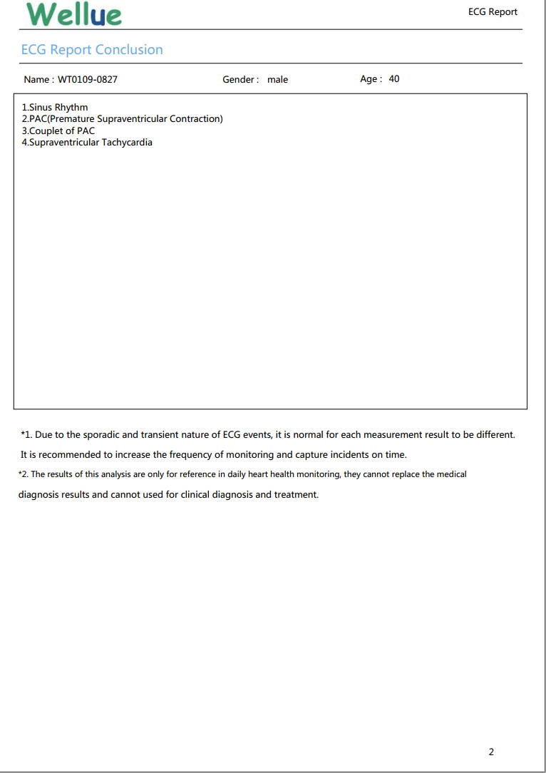ECG detailed report