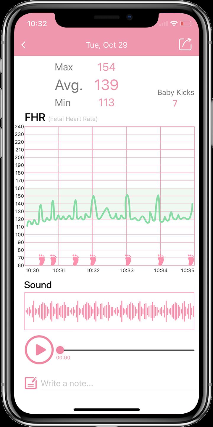 Die Wellue Babytone App hilft beim Überprüfen und Teilen der Aufzeichnungen