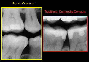 The Seven Deadly Sins of Traditional Class II Restorations