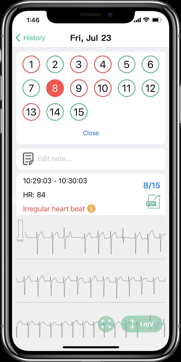 ekg report in APP, ECG result in APP, irregular heartbeat, Arrhythmia, Heart Pause, Atrial Fibrillation (AF), Tachycardia & Bradycardia, Premature Atrial Contractions (PACs)