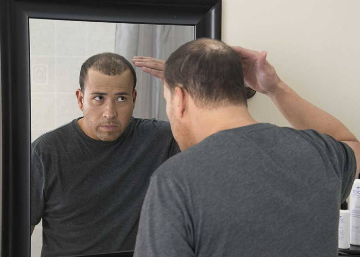 man checking bald spot in a mirror