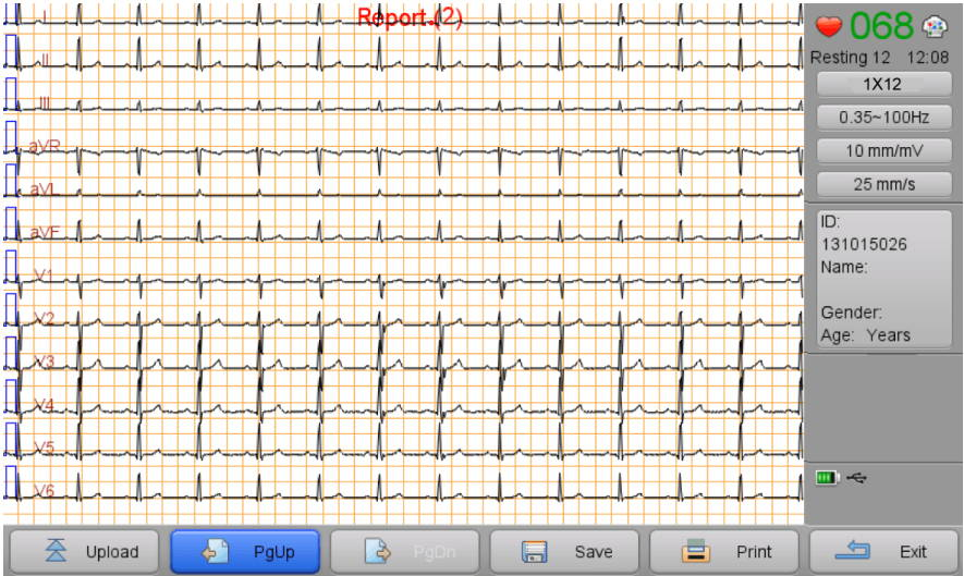 Wellue Biocare iE300 ECG machine analysis report 2 interface with 12-lead waveforms.