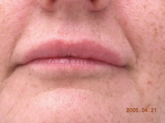 lip injections near me